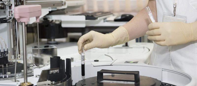 NATJEČAJ ZAKLADE KROHEM-a za istraživačke projekte mladih istraživača u području hematologije